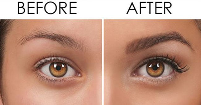 Lifestyle, RemediesThe Best Eyebrow Growth Serum That Really Worked 4