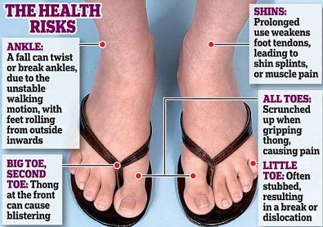 5 Reasons You Should Never Wear Flip-Flops 1