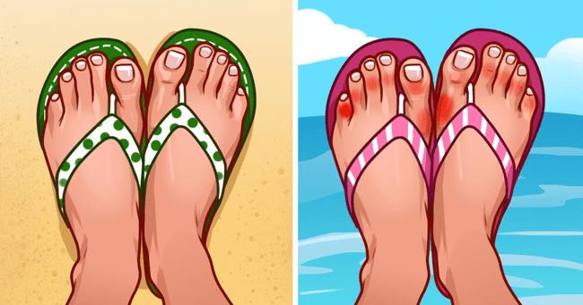 Should Never Wear Flip-Flops