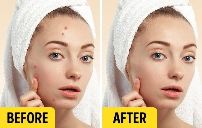 Spray This All Over Your Face At Night And In Just Few Days Your Skin Will Become Milky White And Spotless! 1