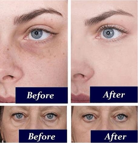 How to remove dark circles & under eye bags with baking soda