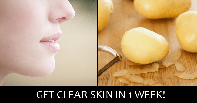 Potatoes For Skin And Health
