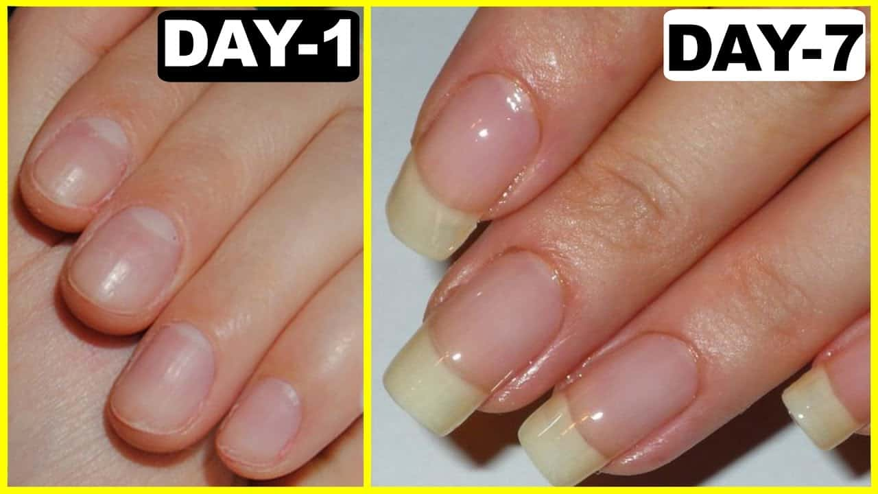 Simple Home Remedies To Grow Your Nails! | Blushy Babe
