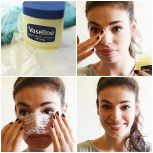 6 Natural Ways to Get Rid of Blackheads and Whiteheads fast 2