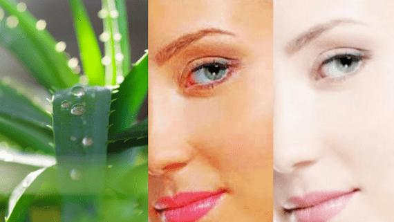 Aloe Vera Home Remedies For Skin 1