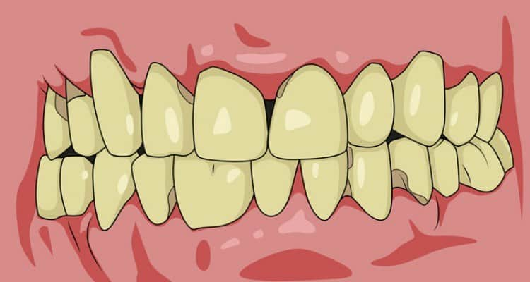 How do you tackle unhealthy or receding gums? 1