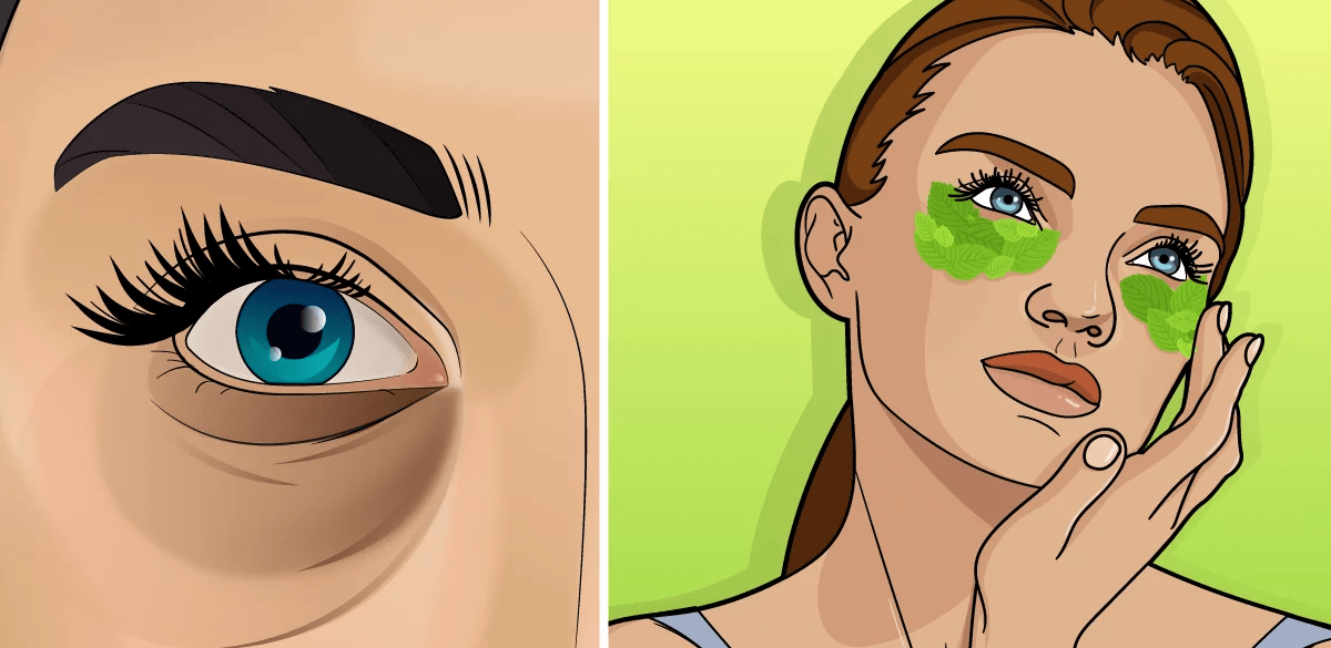 Mint leaves to reduce dark circles 1