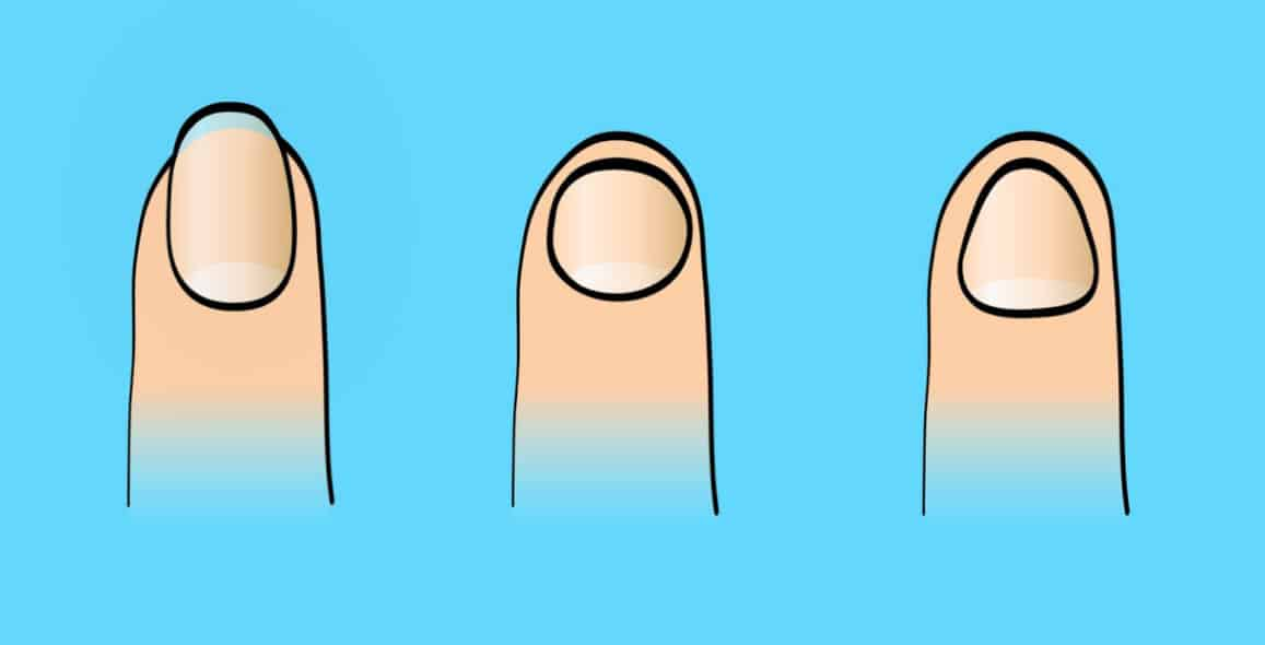 Here's How Your Fingernail Shape Can Reveal A Lot About Who You Are 3
