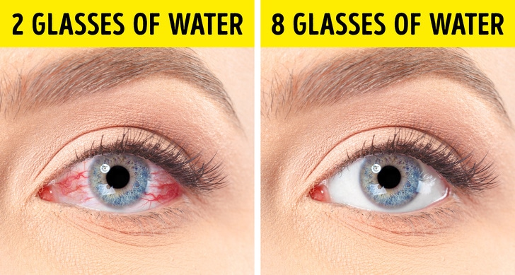 6 Best treatment for dry eyes