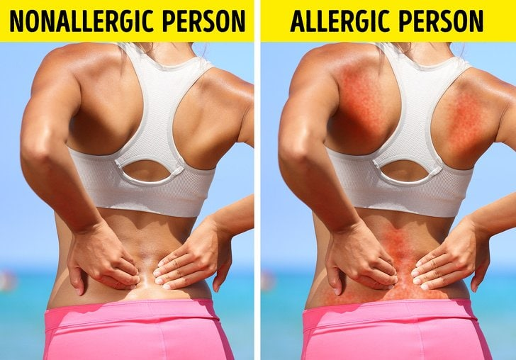 9 Bad Everyday Things That Could Be Allergic To Without Realizing It 5