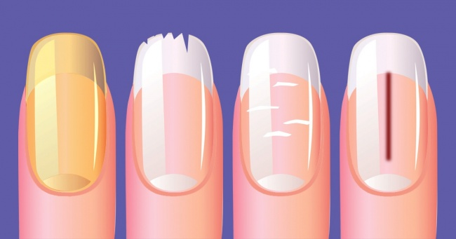 10 Best Things That Your Nails Can Reveal About Your Health 4