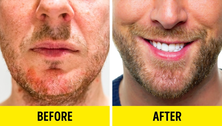 8 Best Methods To Grow A Beard Even If You Think That You Cannot 1