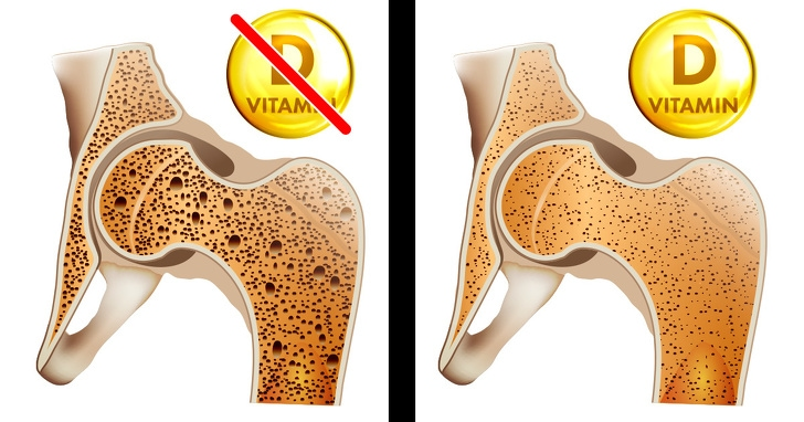 7 Best Signs That Prove Your Body Needs Vitamin Desperately 1