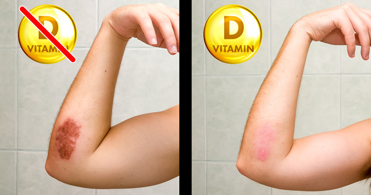 7 Best Signs That Prove Your Body Needs Vitamin Desperately 4