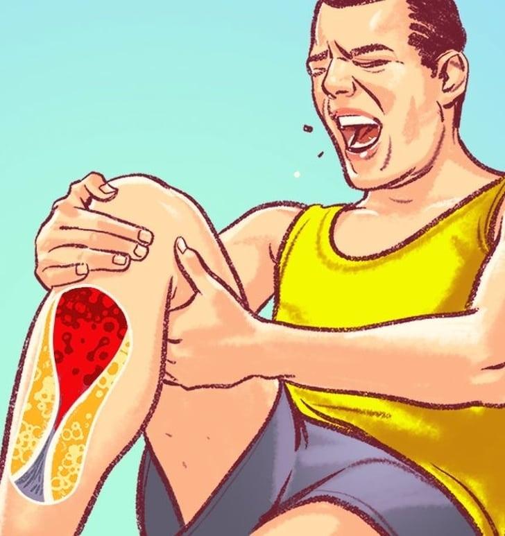 7 Symptoms of damaged arteries