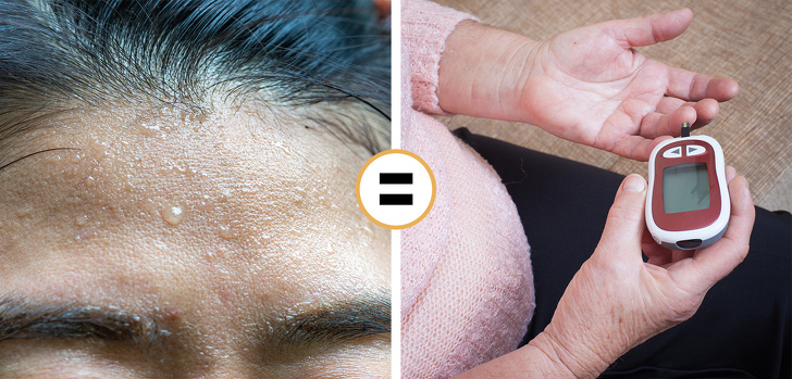 8 Crucial Facts That Actually Mean with Problems With Sweat 3