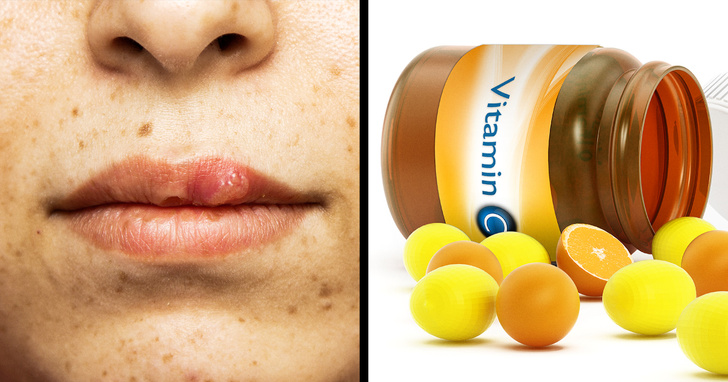 8 Simple Ways To Get Rid Of Cold Sores 1