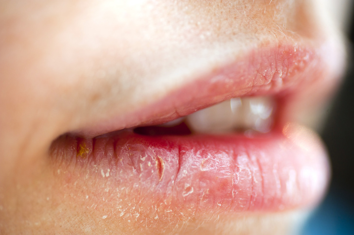 8 Simple Ways To Get Rid Of Cold Sores 6