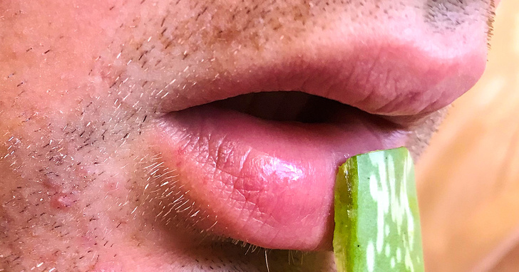 8 Simple Ways To Get Rid Of Cold Sores 4